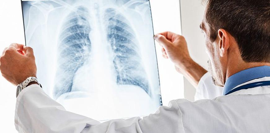 Akciğer kanserinin en büyük sorumlusu sigara