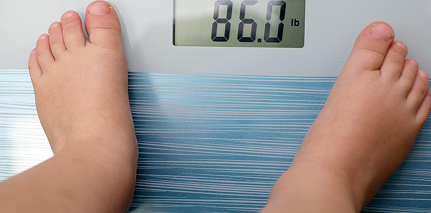 Çocukluk çağı obezitesine karşı erken müdehale önemli